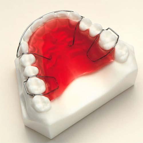 Retention | Weber Orthodontics | Wheaton (IL) Orthodontist